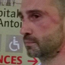 President of Paris Foot Gay victim of homophobic attack